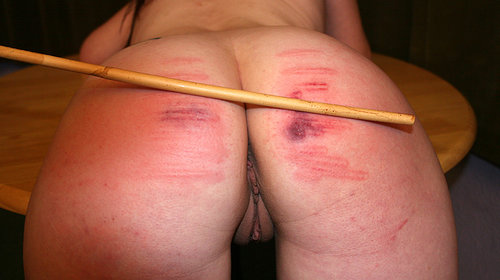 Sharp Pain At Bottom Of Buttock
